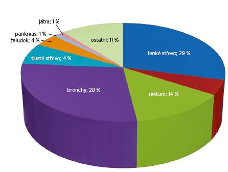Četnost výskytu karcinoidu v různých lokalitách