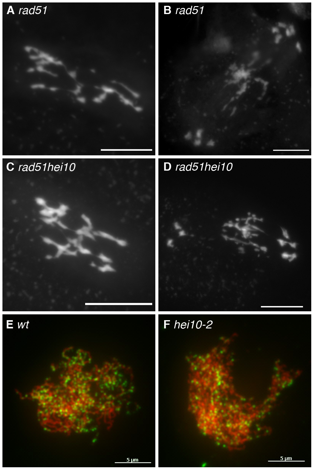 Early recombination defects are not detected in <i>hei10</i> mutants.