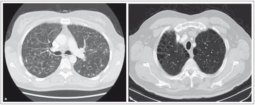 Fig. 2a, 2b. Pulmonary manifestations of LCH: computerized tomography of the chest with multiple nodular foci and cystic changes of the lungs.