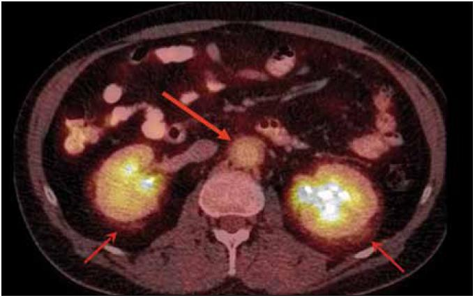 PET-CT pacienta s Erdheimovou-Chesterovou nemocí, která se projevuje fibrózou retroperitona. Šipkami označena perirenální fibróza a dále zesílení stěny aorty s fibrotickými změnami v jejím okolí. Fibróza retroperitonea může vést až k hydronefróze.