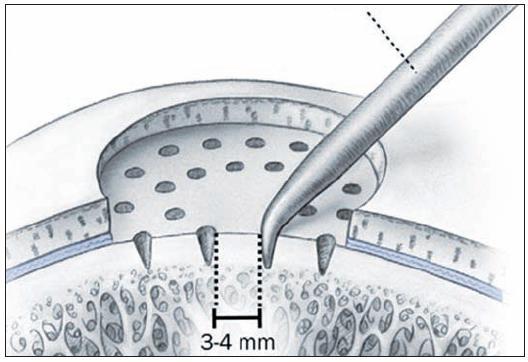 Stimulácia kostnej drene: Mikrofraktúry – podstatou výkonu je perforácia subchondrálnej kosti (reprodukcia z Mithoefer K, Williams RJ, Potter HG, et al. Chondral resurfacing of articular cartilage defects in the knee with microfracture technique. J Bone Joint Surg Am 2006, 88: 294–304)