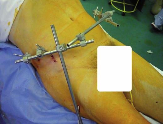 Zevní fixace při stabilizaci zlomenin pánve při současné zlomenině acetabula jako metoda DCO (na obrázku poranění pravého acetabula)