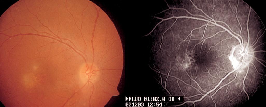 Poléková uveitida imitující zadní uveitidu u 33leté ženy. Makulopatie jako nežádoucí účinek terapie interferonem alfa, kterým byla pacientka léčena z důvodu chronické hepatitidy C. Fluorescenční angiografie dokumentuje prosakování fluoresceinu v makule
