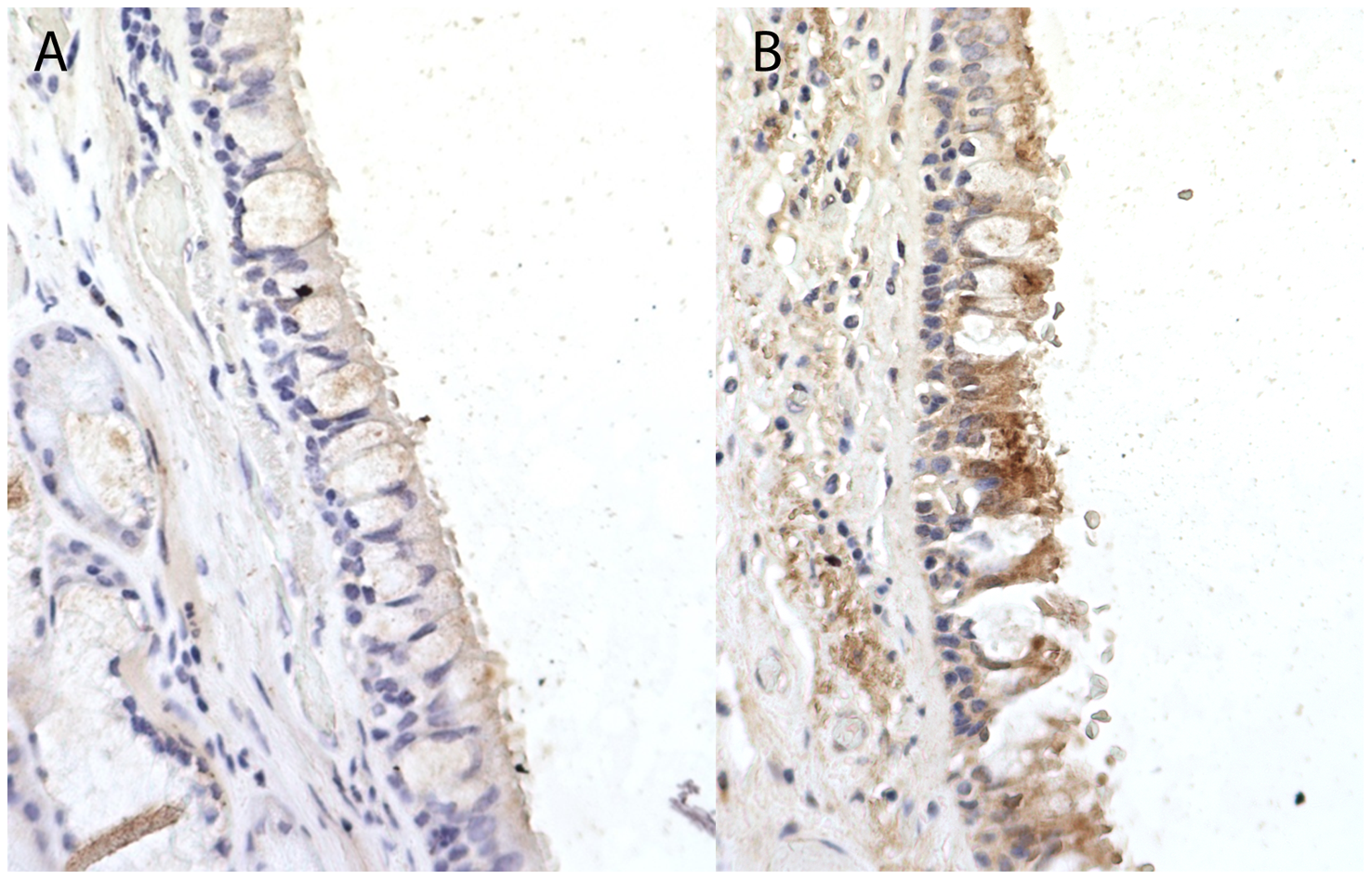 Immunohistochemistry staining for Coiled-Coil Domain-Containing Protein 38 (CCDC38) in a normal human bronchial epithelium at ×40 magnification.