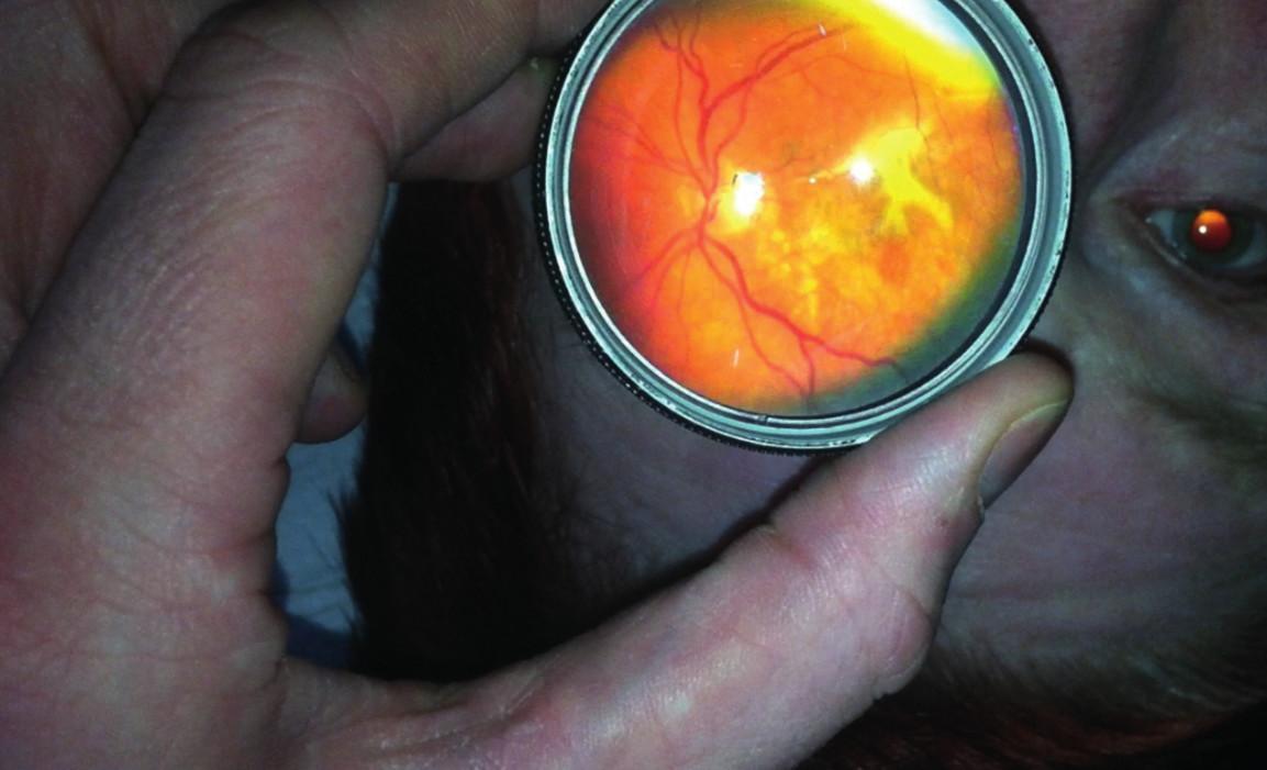 Snímek centrální krajiny sítnice u 65letého pacienta s pokročilou formou věkem podmíněné makulární degenerace.
