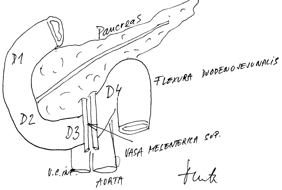 Anatomicko-topografické vztahy duodenopankreatické krajiny Fig. 4: Anatomical-topographic relations in the duodenopancreaticregion