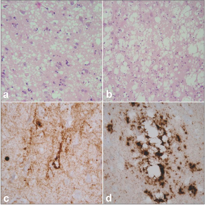 Neuropatologický obraz prionového onemocnění. Spongiformní dystrofie charakterizovaná malými (a) a většími, splývajícími (b) vakuolami, úbytkem neuronů a gliózou. Hematoxylin-eozin, zvětšení 400× (a), 200× (b). Imunohistochemické znázornění patologické formy prionového proteinu charakteru perineuronálních depozit na pozadí difuzní synaptické pozitivity (c). Perivakuolární a tzv. plaque-like depozita (d). Protilátka 6H4, zvětšení 400×.