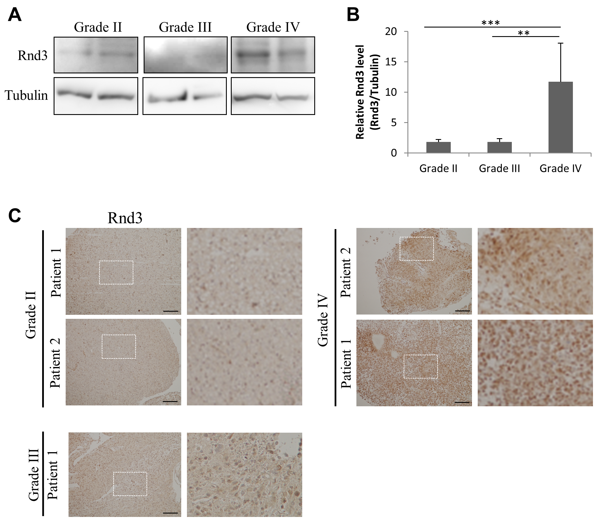 RND3 is up-regulated in grade IV glioma.