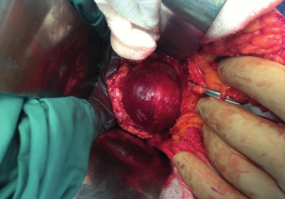 Peroperační nález schwannomu