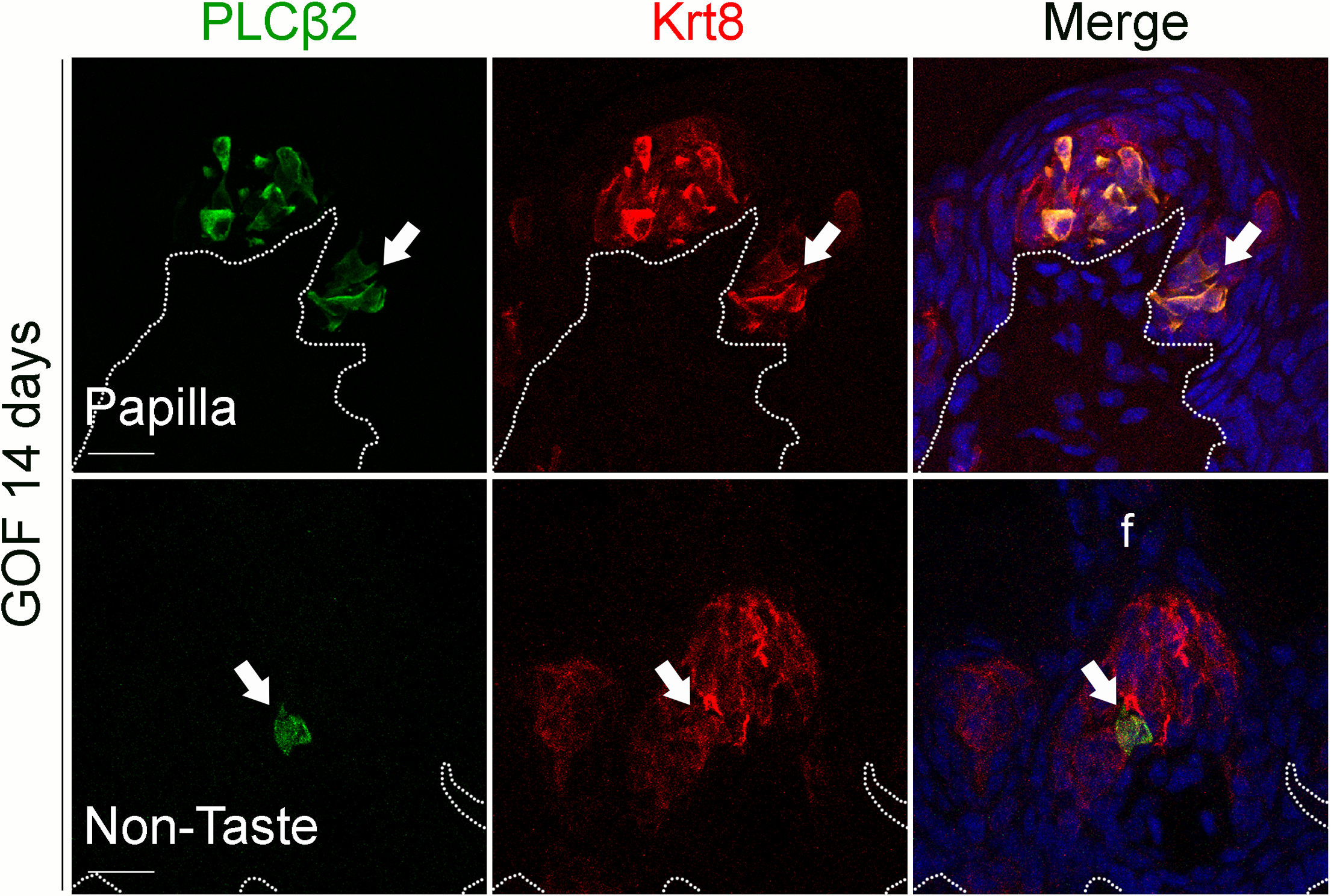 Prolonged stabilization of β-catenin in Krt5<sup>+</sup> progenitors induces differentiation of a small number of Type II cells in ectopic taste bud-like structures in the anterior tongue.