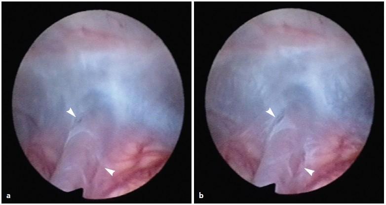 a, b. Ukázka chlopně utvořené arachnoideální membránou obklopující arteria basilaris. Chlopeň se uzavírá a otevírá synchronně s pulzací arterie. Peroperačně pořízený endoskopický snímek ukazuje chlopeň uzavřenou (a) a otevřenou (b), (šipky).