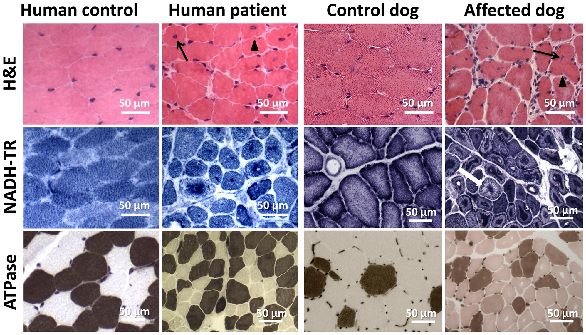 Histopathological comparison of muscles from human patient and IMGD dog.