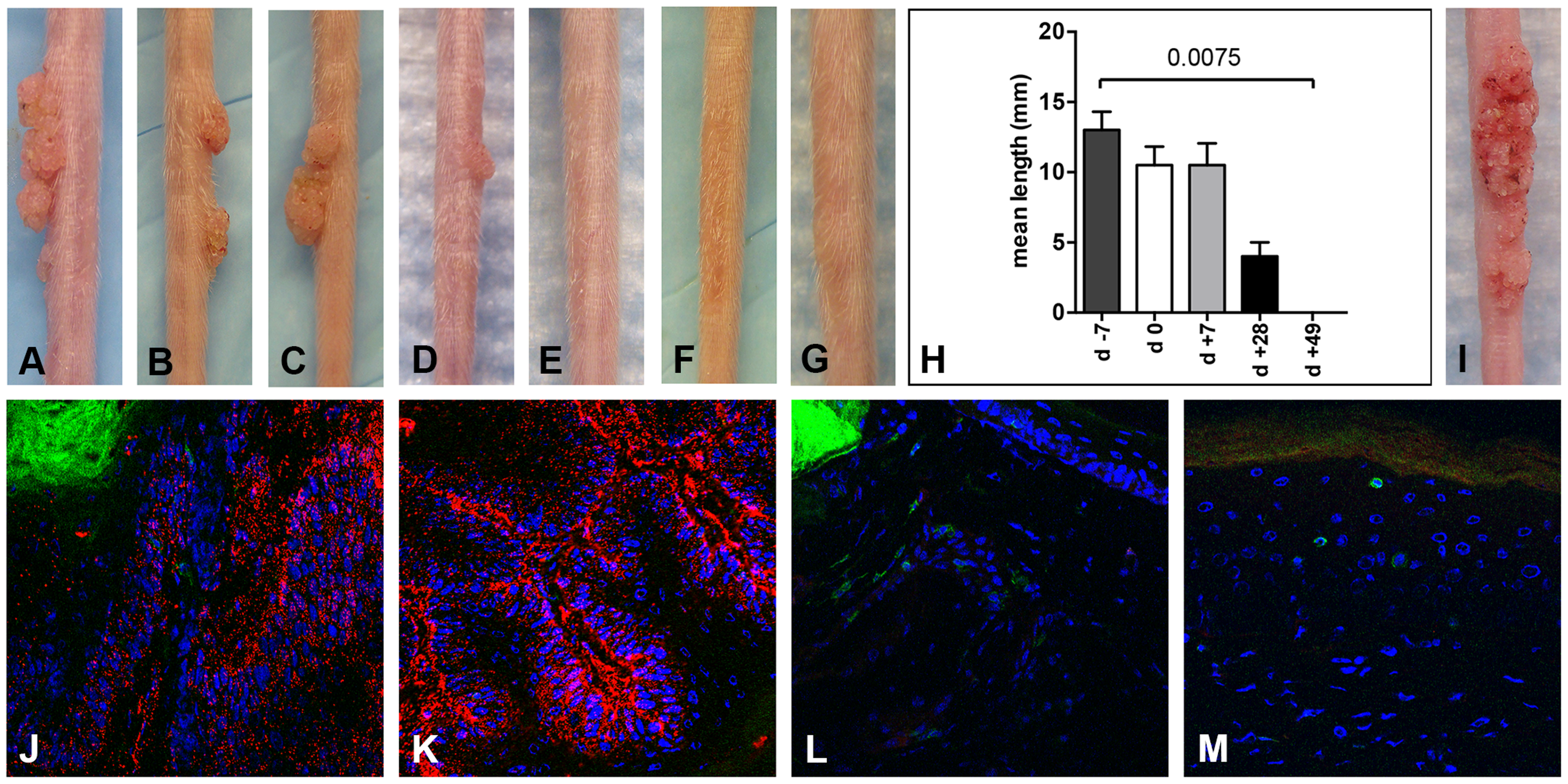 CD3<sup>+</sup> T cell depletion allows papilloma formation in Cr:ORL SENCAR mice.