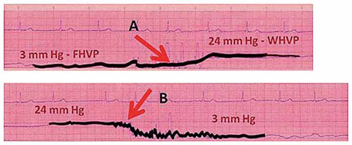 Záznam z katetrizace jaterních žil ukazující vzestup tlaku (A) při nafouknutí balónku a opětný pokles tlaku (B) při vyfouknutí balónku.