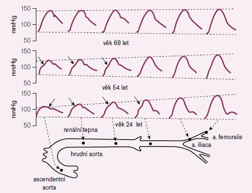 Tlakové vlny registrované ve velkých tepnách u různě starých jedinců. U nejmladšího jedince se zvyšuje amplituda tlakové vlny přibližně o 60 % během postupu po tepenném řečišti. U nejstaršího jedince není prakticky žádná amplifikace TK.