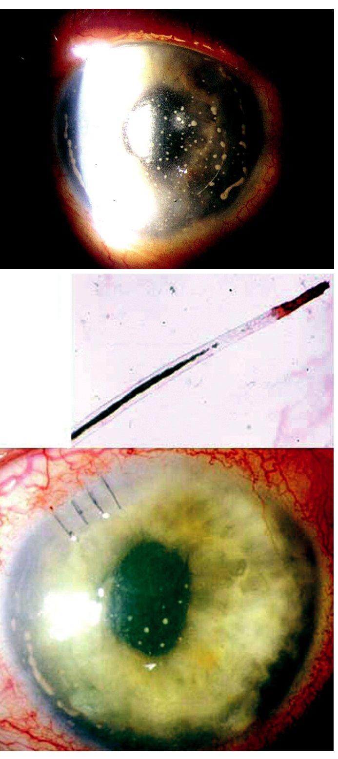 Cizí nitrooční těleso imitující pooperační endoftalmitidu u 72leté pacientky. A) Špekovité precipitáty na endotelu rohovky a fibrin v přední komoře levého oka, nález 4 týdny po operaci katarakty. B) Histopatologické vyšetření vzorku tekutiny z přední komory a vlasovitého útvaru prokázalo, že se jedná o řasu