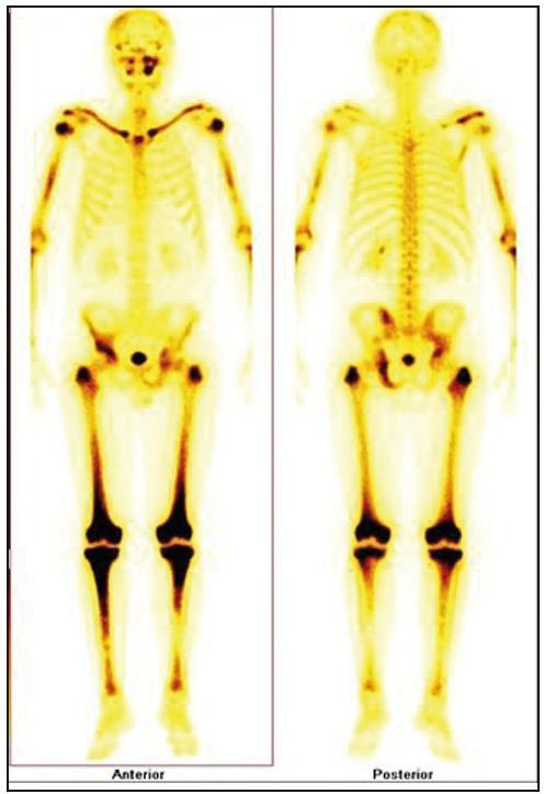Scintigrafie skeletu: zvýšená aktivita radiofarmaka je vidět hlavně ve dlouhých kostech – oba humery ve střední třetině, v distálních částech obou femorů, v proximálních částech obou tibií, v obou klavikulách, v oblasti pánve – os ischii vlevo, os pubis vpravo, os ilium vpravo, v oblasti levého SI skloubení, dále v oblasti maxily vlevo, difuzně vyšší aktivita v oblasti kalvy s ložisky vpravo parietálně a částečně frontálně bilaterálně.