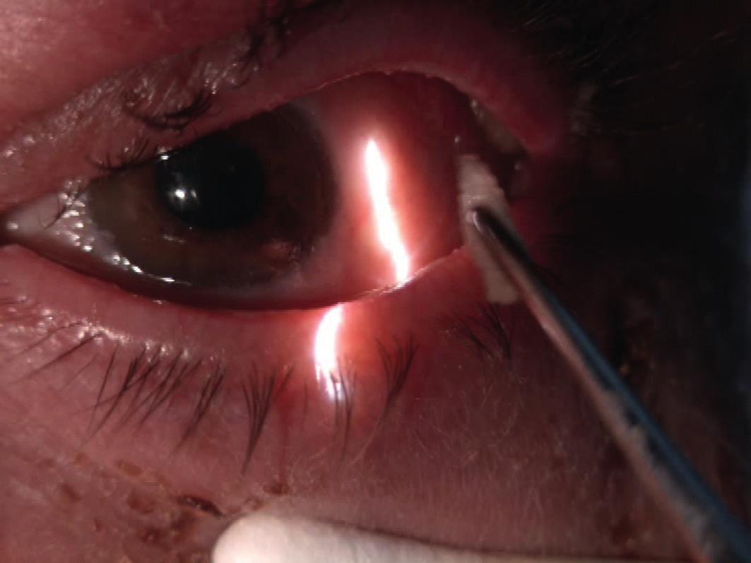 Manuální vybavení larev v lokální anestezii