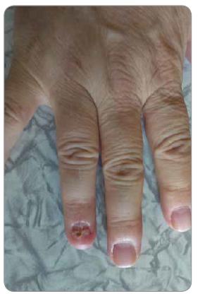 Po operácii – glomus tumor nechta 4. prsta pravej ruky