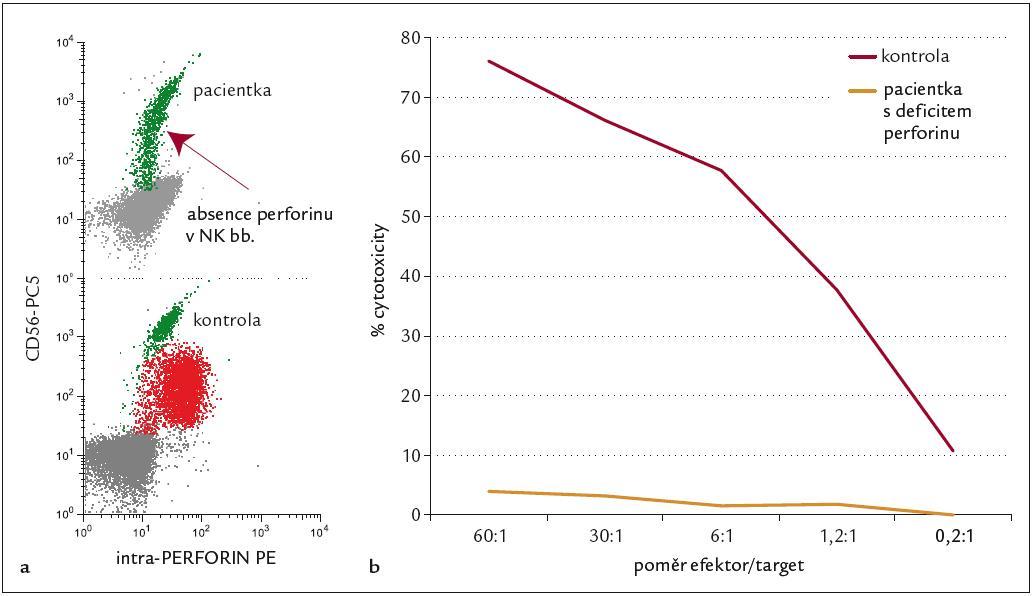 FHL – imunologická diagnostika. 6a: Průkaz defi citu perforinu v NK buňkách metodou FACS – absence signálu při dvoubarevné CD analýze u pacientky s FHL (řádek 1) ve srovnání se zdravou kontrolou (řádek 2). 6b: Patologický test cytotoxické funkce T lymfoblastů – významně defi citní odpověď u pacientky č. 1 ve srovnání ze zdravou kontrolou.