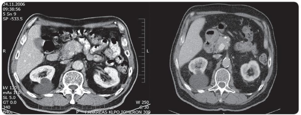 Obr. 7a. Předoperační kontrastní CT pankreatu (portální fáze) zobrazující hyperdenzní nádor hlavy pankreatu infi ltrující VMS. Obr. 7b. Kontrastní CT pankreatu (portální fáze) 3 roky po RFA zobrazující mírnou regresi velikosti nádoru.