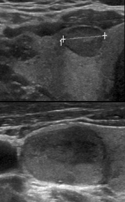 Příklady uzlů se střední suspekcí (solidní hypoechogenní, bez další suspektních znaků).