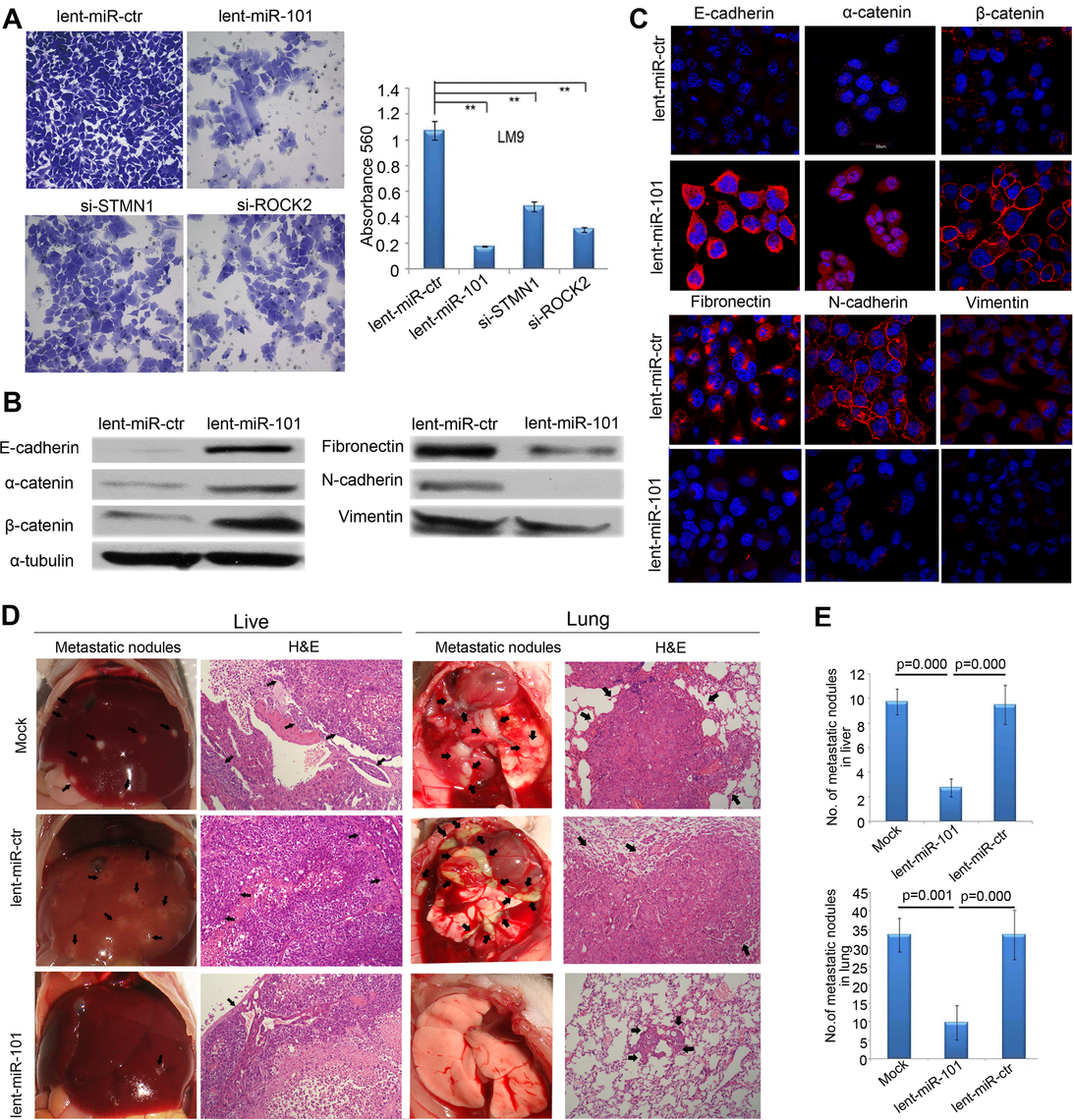 Enforced overexpression of miR-101 inhibits HCC LM9 cells invasion and EMT <i>in vitro</i> and reduces metastasis <i>in vivo</i>.