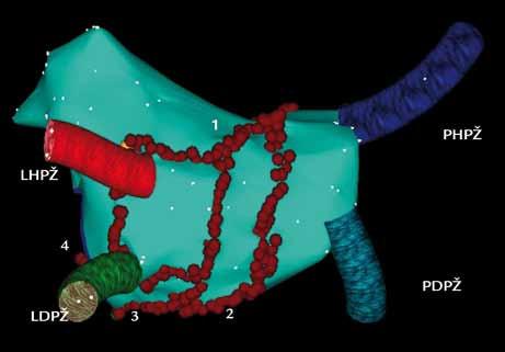 Trojrozměrná elektroanatomická mapa levé síně a plicních žil pomocí systému CARTO u dlouhodobě perzistující formy FS (pohled PA – posteroanteriorní na zadní stěnu levé síně). Cirkumferenční ablační linie kolem pravostranných a levostranných plicních žil jsou doplněny o další linie v levé síni. 1 – linie ve stropu levé síně, 2 – linie spojující dolní část společných obkružujících linií pravostranných a levostranných plicních žil, 3, 4 – dvě ablační linie, spojující dolní část cirkumferenční linie kolem levostranných plicních žil s mitrálním anulem. PHPŽ – pravá horní plicní žíla, PDPŽ – pravá dolní plicní žíla, LHPŽ – levá horní plicní žíla, LDPŽ – levá dolní plicní žíla