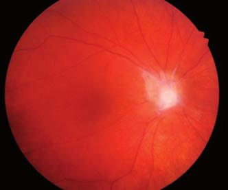 Obr. 2b Pooperační nález pravého oka šestileté dívky