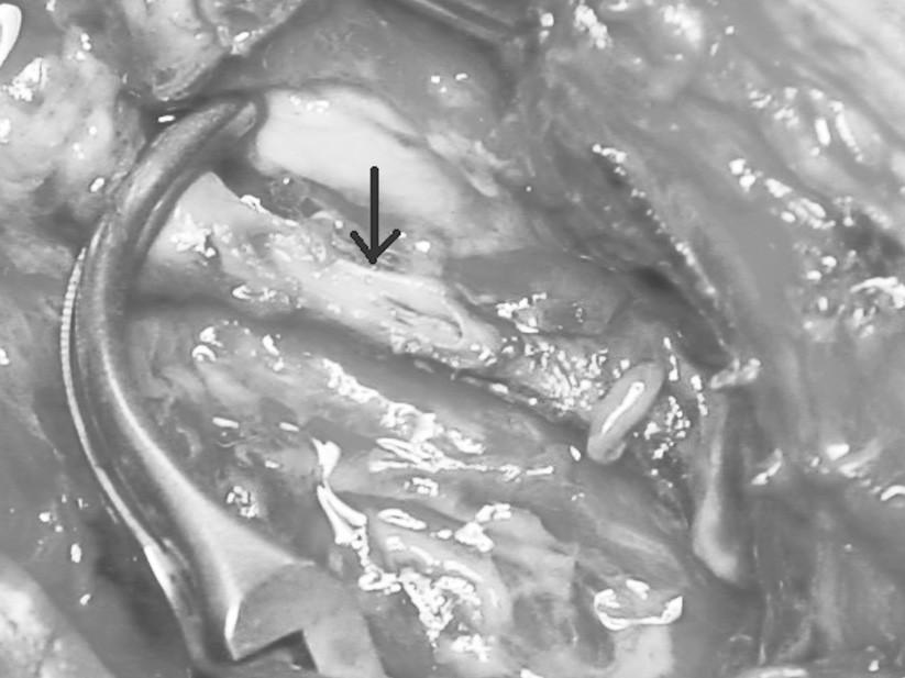 Podrobnější pohled na oblast pseudoaneuryzmatu s poškozením stěny arteria brachialis Fig. 2. A more detailed view of the pseudoaneurysm with the defect in the arterial wall of the brachial artery