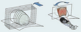 Schéma 3b. Modifikace ohniska: laterolongitudinálne (1,7 mm).