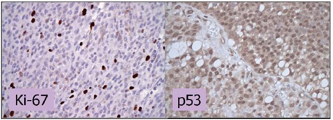 Imunohistochemické vyšetrenie expresie Ki-67 a p53. Vyšetrenie expresie Ki-67 dokumentuje proliferačnú aktivitu MMU. V histologickom preparáte je pozitívnych do 10 % jadier, čo znamená priaznivú prognózu. V prípade p53 predstavuje farbenie jadier v 85% zvýšenú expresiu p53 a svedčí pre menej priaznivú prognózu. Zväčšenie 400x.
