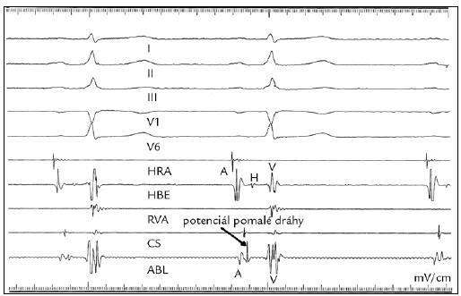RFA typické AVNRT, intrakardiální záznam potenciálu pomalé dráhy v místě aplikace RF energie. HRA – horní pravá síň, HBE – Hisův svazek, RVA – pravá komora, CS – koronární sinus, ABL – intrakardiální záznam z ablačního katetru: A – síňová aktivita, ostrý potenciál pomalé dráhy, V – komorová aktivita, H – aktivita Hisova svazku.
