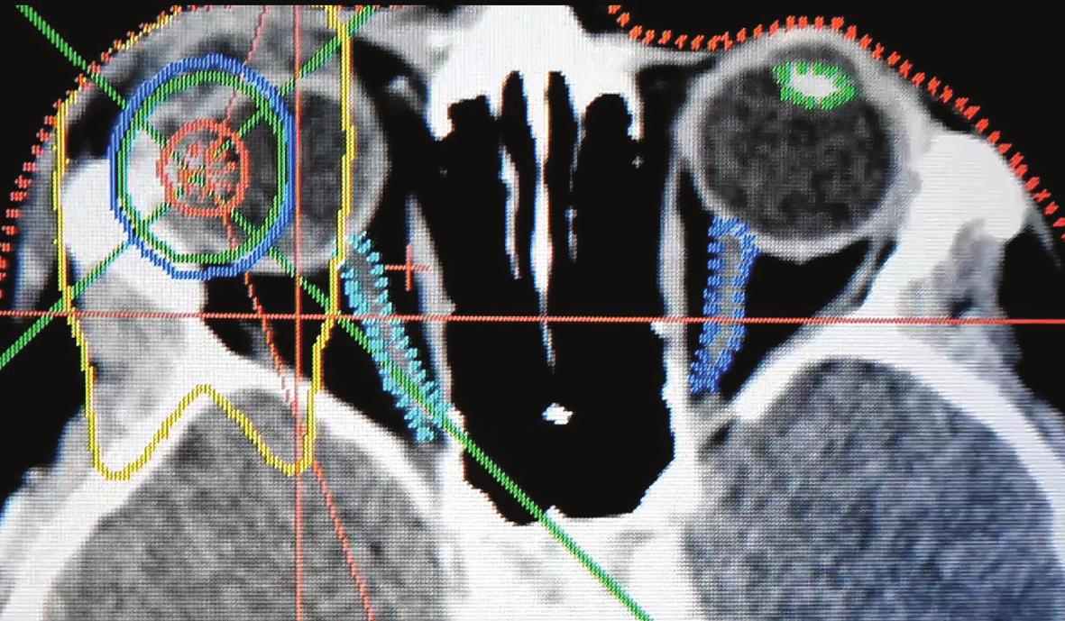 Stereotaktický rádiochirurgický plán ožiarenia pacienta s vnútroočným nádorom - izodózové rozdelenie, nádorové ložisko označené červenou farbou