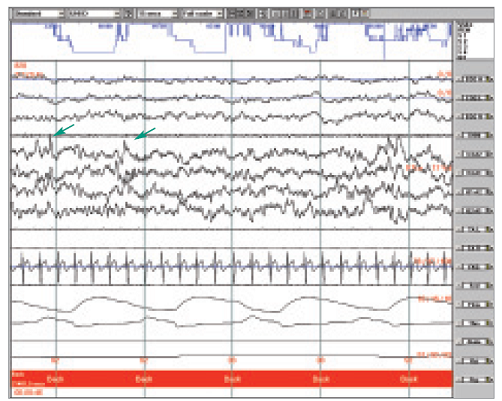 Ukázka polygrafického záznamu NREM II, šipkami označená sekvence dvou K-komplexů, hodnocená jako A fáze CAP.