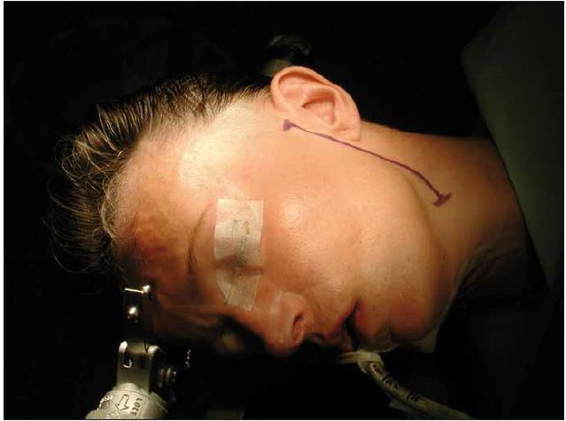 Poloha pacienta a kožní řez pro hemihypoglossofaciální anastomózu.