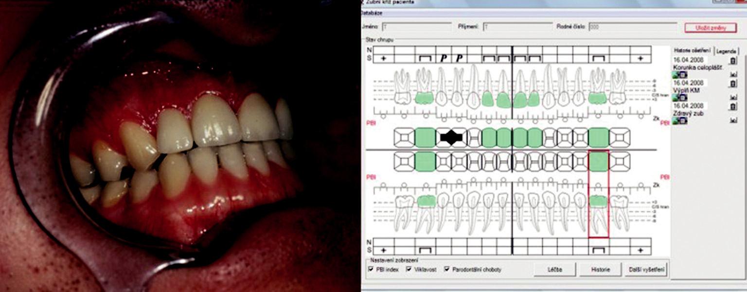 Celokeramické korunky in situ a analýza výsledku pomocí interaktivního zubního kříže.