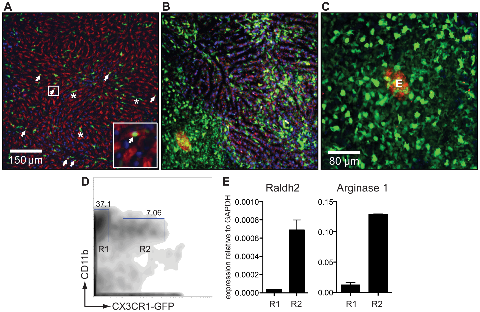 CX<sub>3</sub>CR1-GFP<sup>+</sup> AAMφ in the liver granulomas of <i>S. mansoni</i> infected mice express Raldh2.