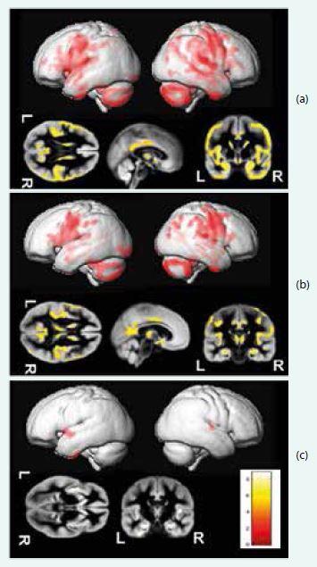 Srovnání schizofrenních a kontrolních osob vykazuje nezávisle na přítomnosti latentní toxoplazmózy významnou redukci objemu šedé hmoty u schizofrenních osob (a), rozdíl mezi pacienty a kontrolami byl vice vyjádřen u Toxoplasma gondii pozitivních nemocných (b) nežli v případě srovnání neinfikovaných (c). Upraveno podle [9]