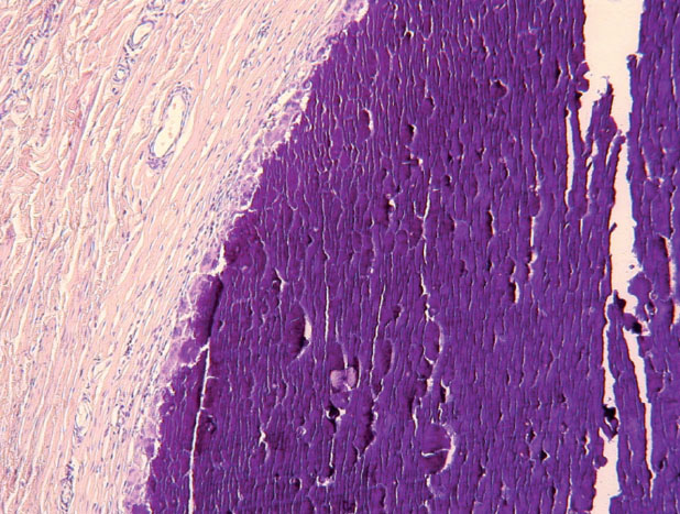Histologický obraz – uzlovité depozity vápníka v derme (HE, 100x)