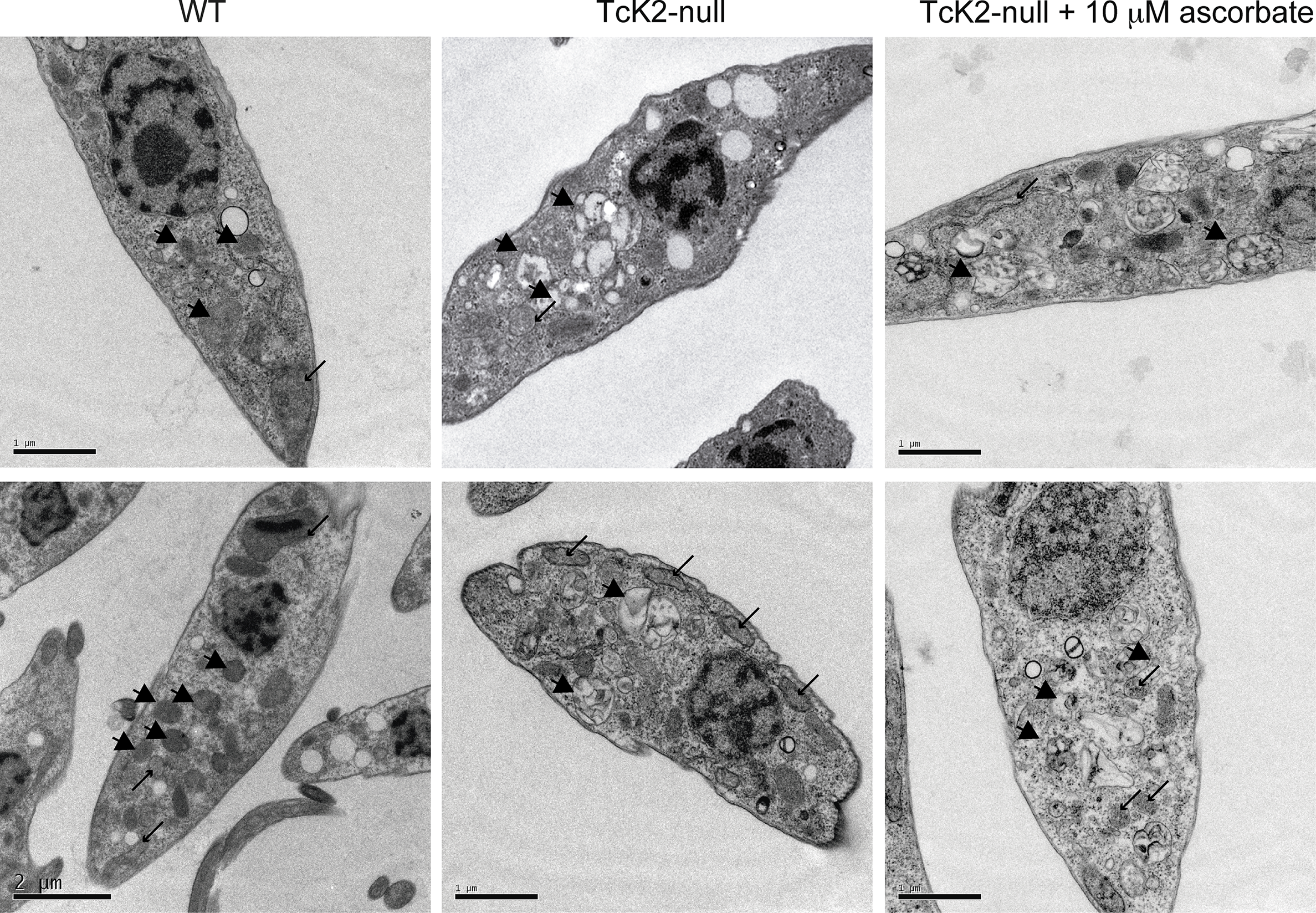 TcK2 null parasites lose electron dense organelles and their contents are not restored by ascorbate.