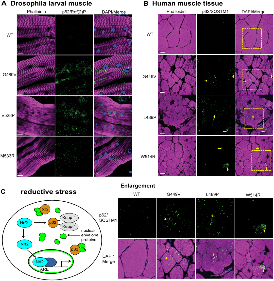 Mutant lamins cause increased levels of p62/SQSTM1 in Drosophila muscles and human muscle biopsy tissues.