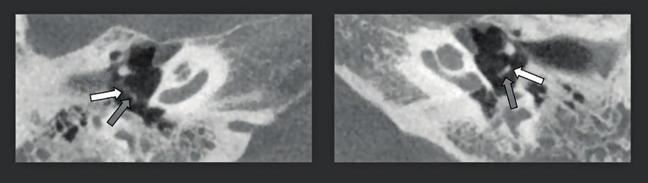 CBCT u pacienta s vrozenou převodní nedoslýchavostí: lýza inkudostapediálního skloubení na pravé straně.