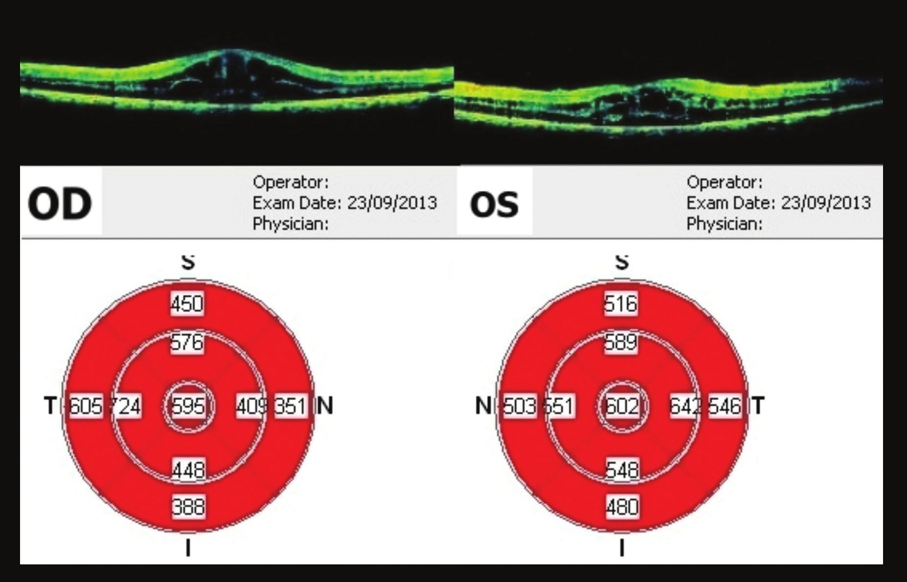 OCT makul 44 týdnů od prvního vyšetření CME, na OP ve fovee 595 μm, na OL 602 μm