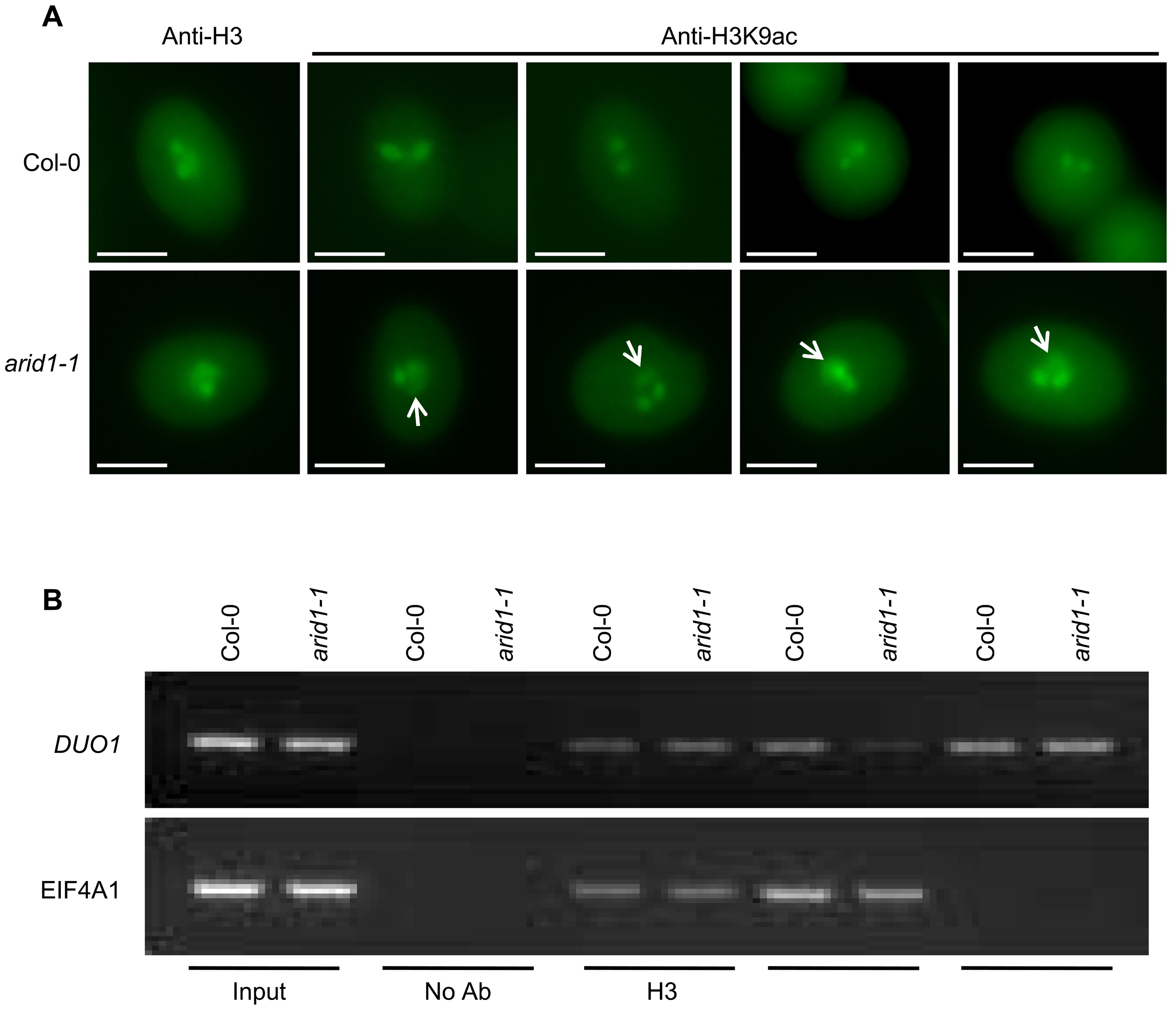 Altered histone acetylation in <i>arid1-1</i>.