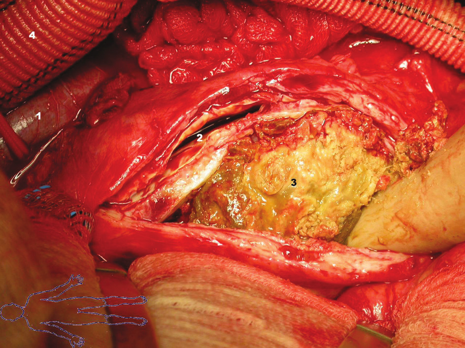 Stav po otevření vaku výdutě: 1 – vena cava inferior 2 – pravé lumen břišní aorty 3 – falešné lumen vyplněné trombotickými hmotami 4 – bifurkační protéza Fig. 3. St. p. the aneurysmal sac opening: 1 – vena cava inferior 2 – right lumen of the abdominal aorta 3 – fals lumen filled with thrombotic masses 4 – bifurcated prosthesis