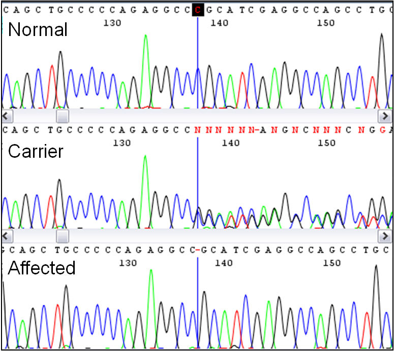 Discovery of the Lavender Foal Syndrome–associated single base deletion by sequencing.