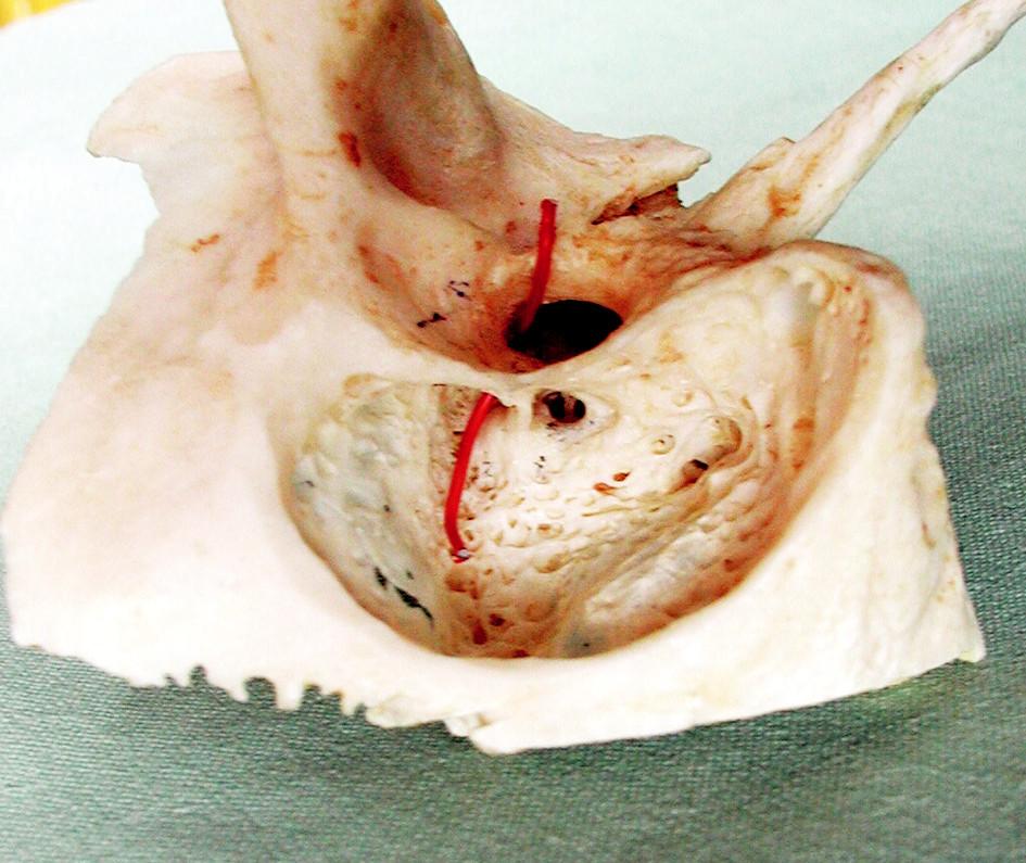 Mastoidektomie na kadeveru. Sondou vyznačeno spojení mezi tympanální a mastoideální dutinou.