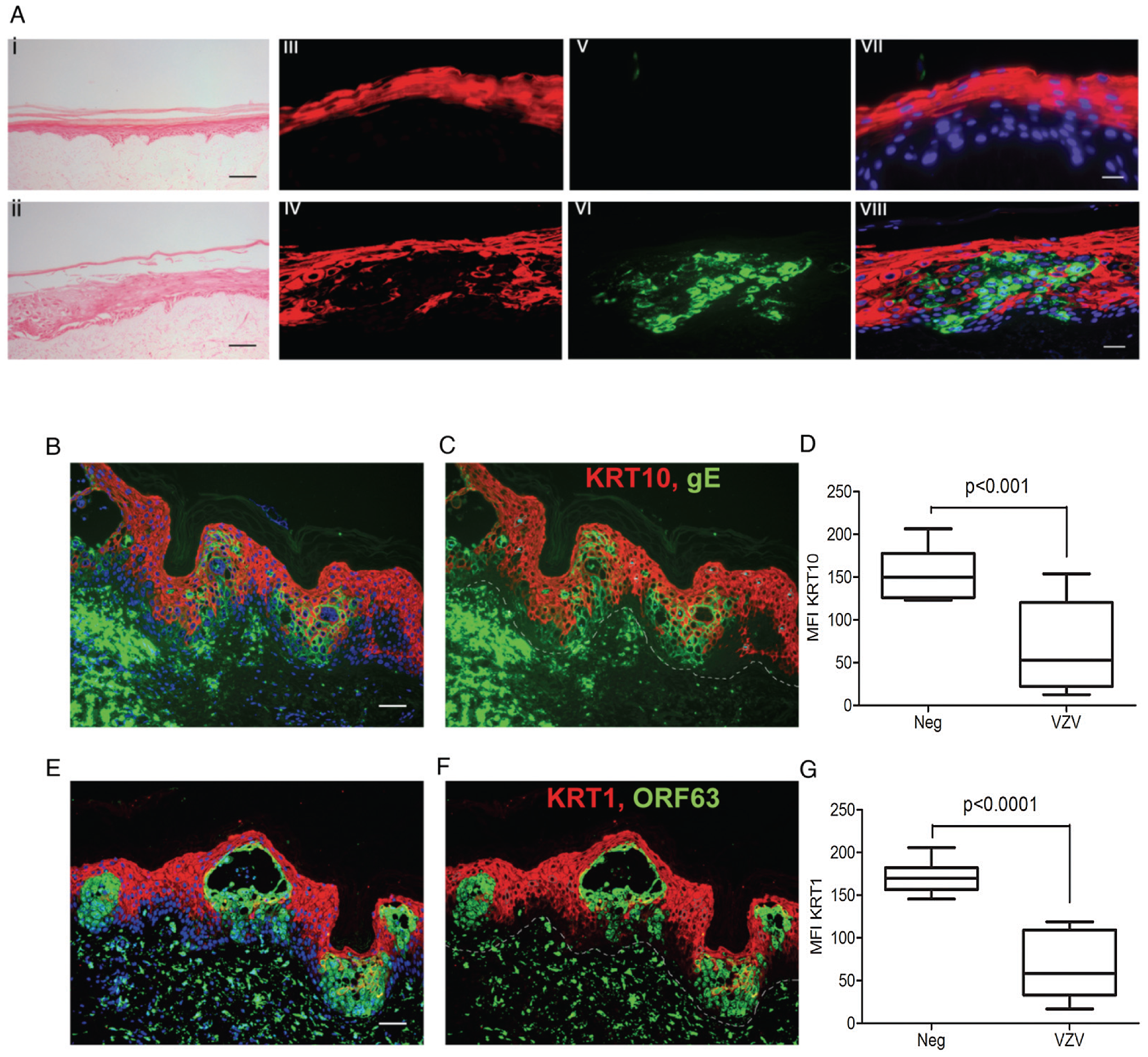 VZV downregulated <i>KRT1/10</i> expression in the epidermis.