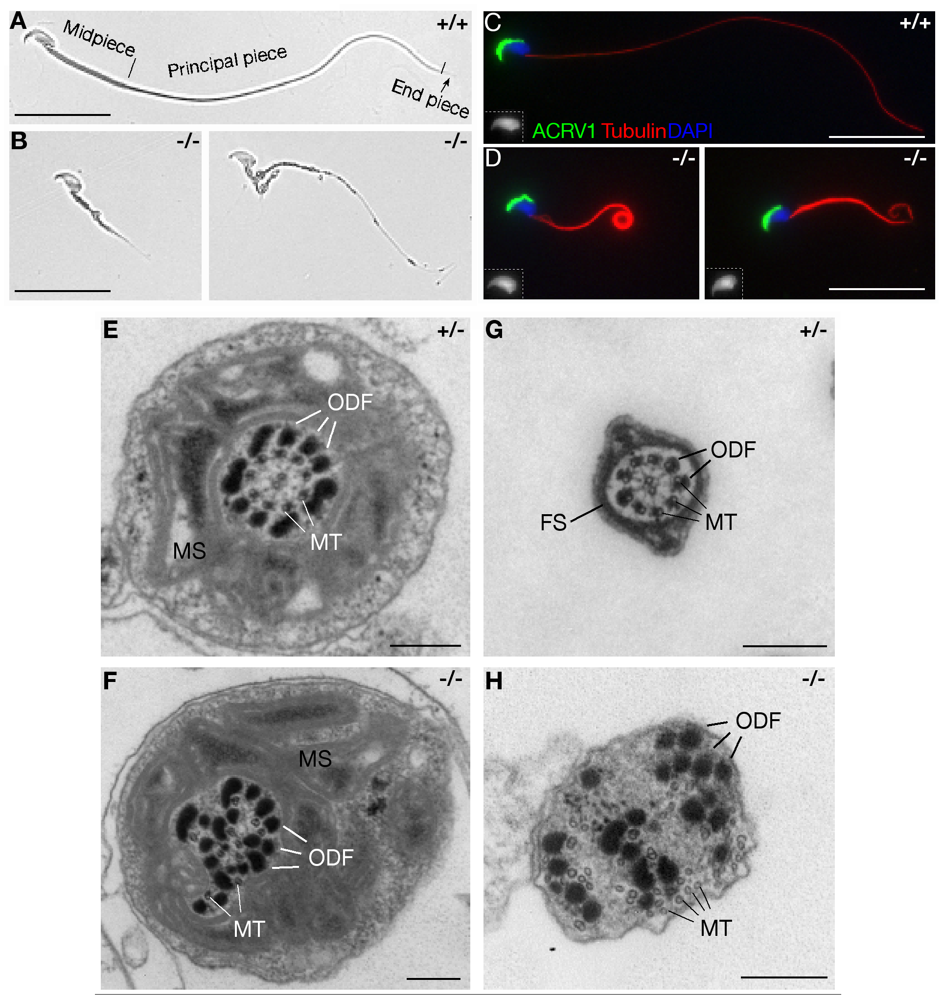 MNS1 is essential for the assembly of sperm flagella.